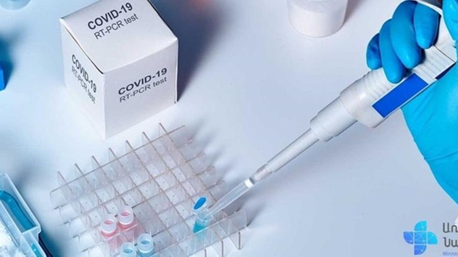 Հաստատվել է կորոնավիրուսային հիվանդության 86 նոր դեպք